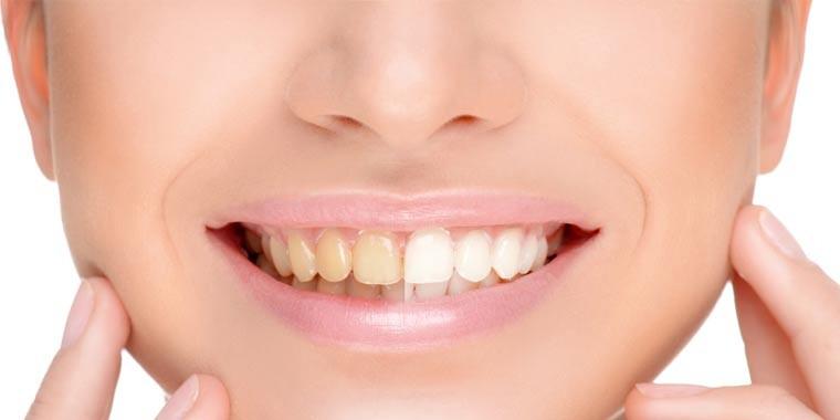 tandenbleek