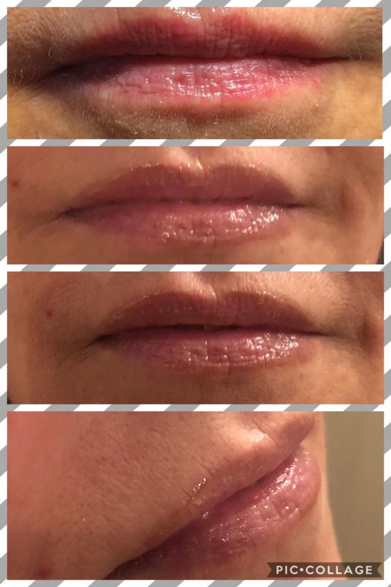 PMU lip