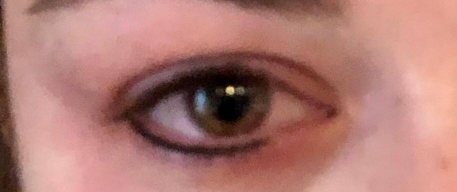 PMU oog